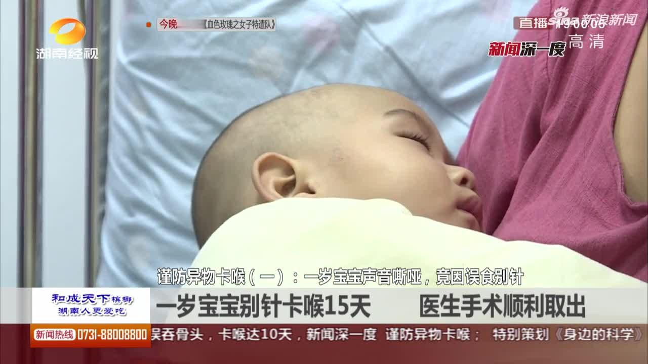 视频:一岁宝宝别针卡喉15天 医生手术顺利取出