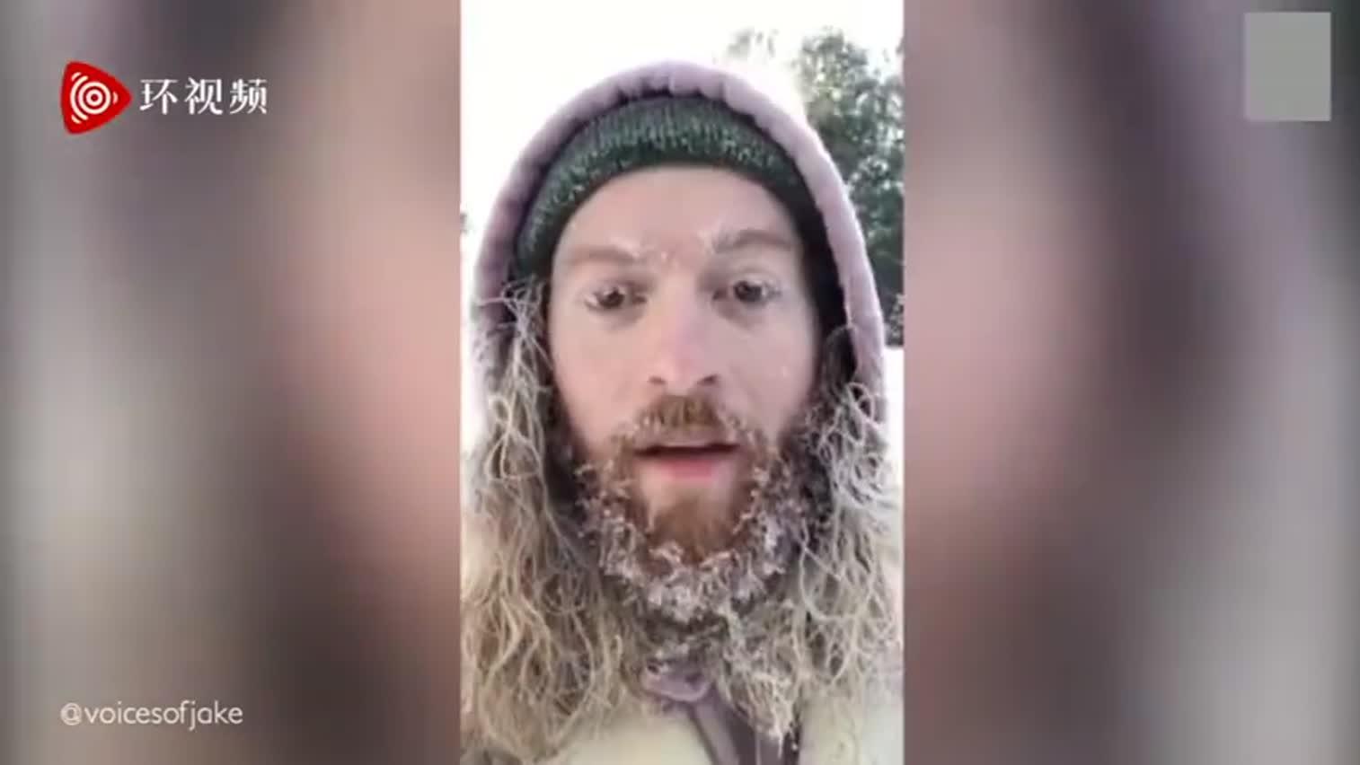 视频-美国男子在零下26度室外待两小时 记录胡子
