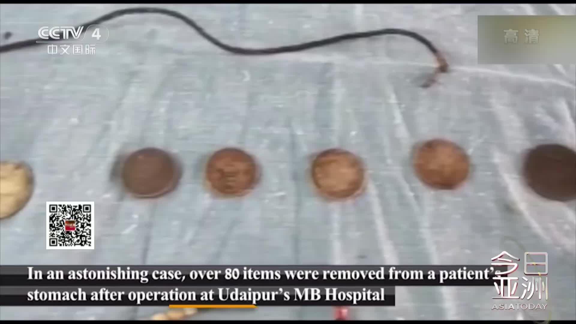 视频:印度男子腹痛就医 胃中惊现指甲刀等80件异