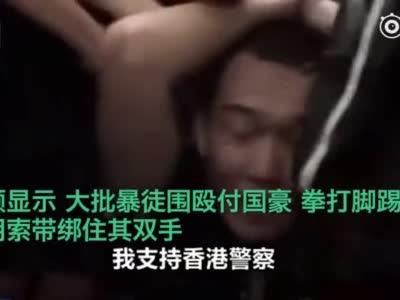 视频|环球网记者香港机场被暴徒非法拘押殴打:我支持香港警察 你们可以打我了