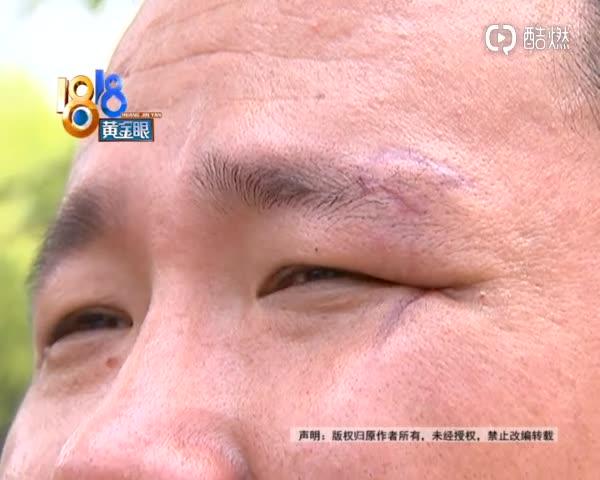 视频:男子骑小米平衡车 车子突然后仰致其摔伤