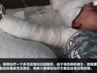 妈妈不哭!2岁女娃意外烧伤 母亲欲割皮救女反被安慰